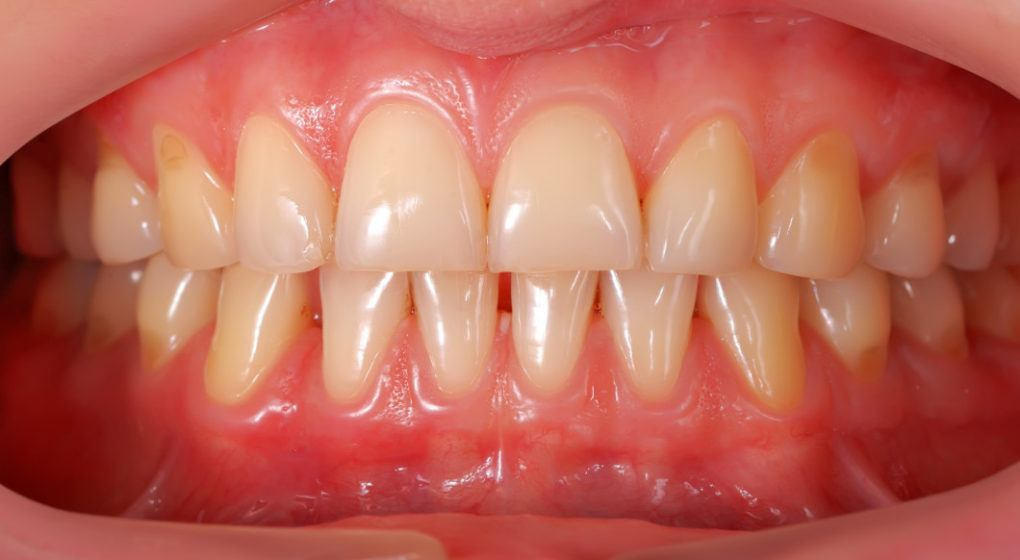 High resolution photo of human teeth showing the gums